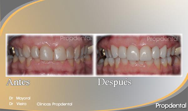 diseño de sonrisa caso clínico