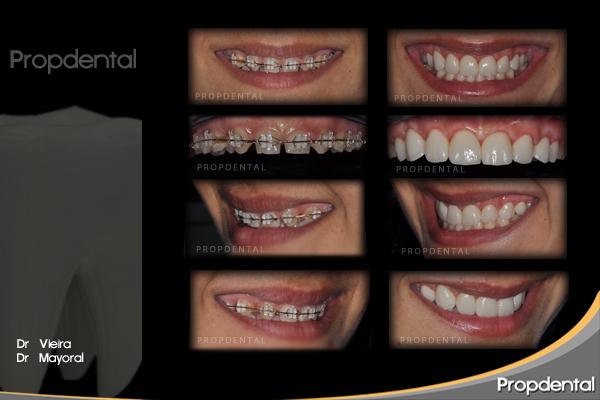 caso clínico carillas sin tallar el diente