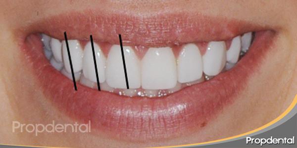 ejes axiales de los dientes