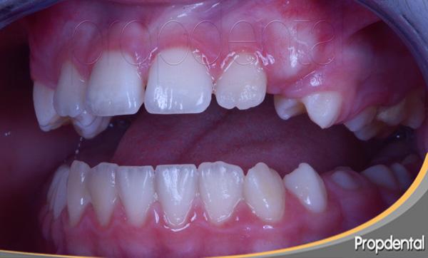 edad erupción dental