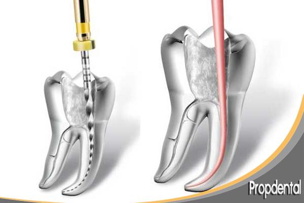 endodoncia mecanizada de un molar