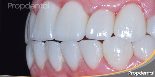 estetica-dental-perfil-derecho