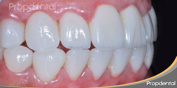 estetica-dental-perfil-izquierdo