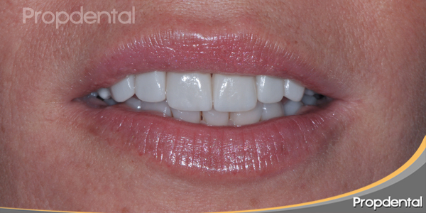 estética dental con labio en reposo