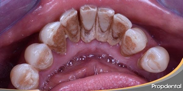etiología enfermedades periodontales