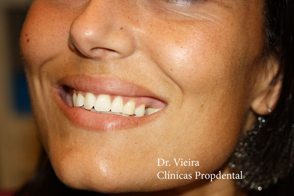 caso clínico rehabilitación de un único diente en el sector estético de la boca