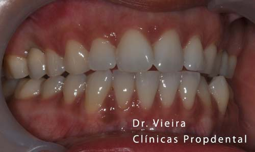 implante dental Barcelona