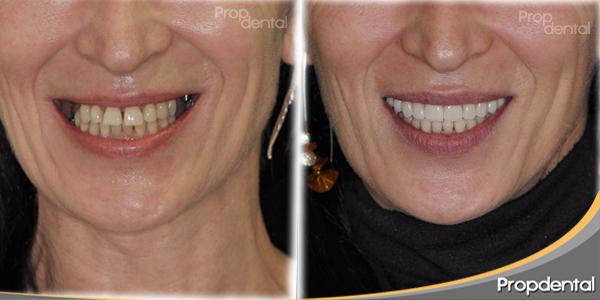 antes y después del tratamiento de implantes dentales barcelona
