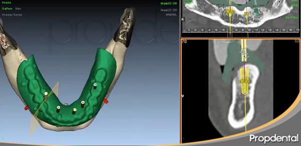 implantología guiada por ordenador