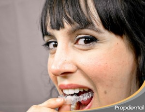 invisalign gina tost