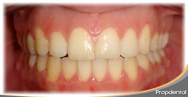 mordida corregida con el tratamiento con ortodoncia invisalign