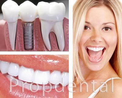 cuidados tras la colocación de los implantes dentales en barcelona