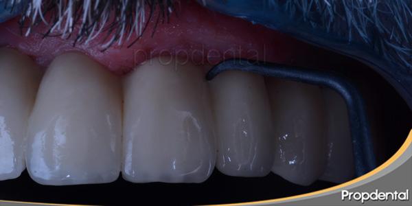 mantenimiento prótesis sobre implantes