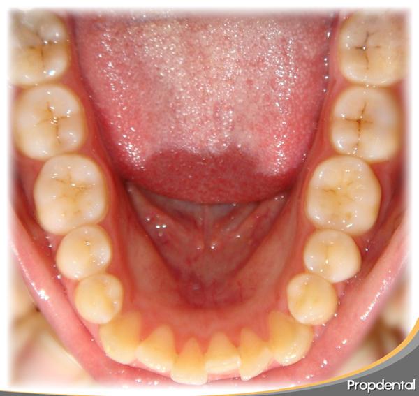 inicio del tratamiento con la ortodoncista