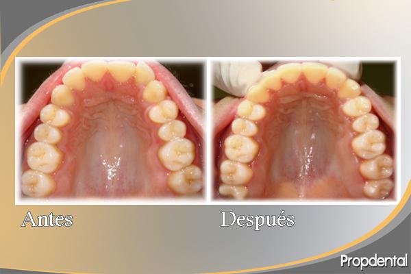 antes y después del tratamiento de la mordida abierta con invisalign