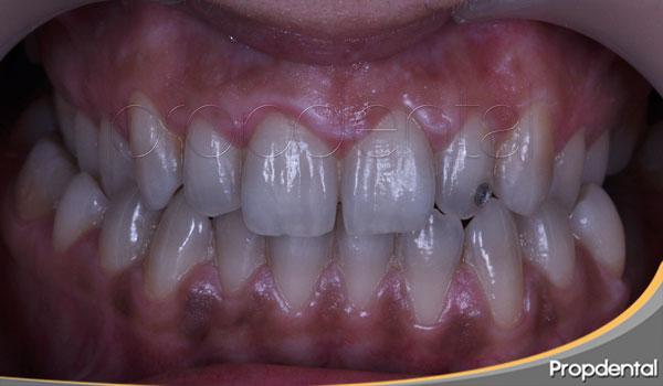 mordida cruzada dientes posteriores