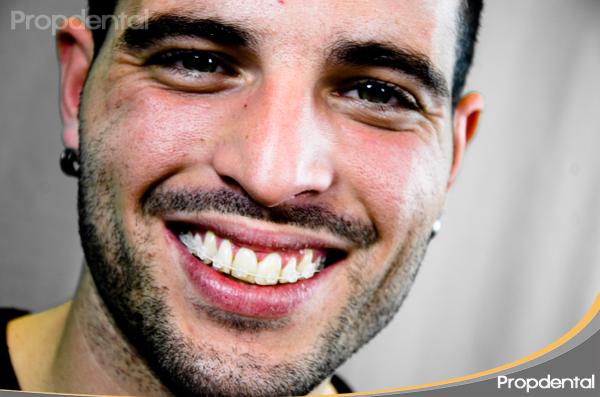 testimonio de ortodoncia barcelona