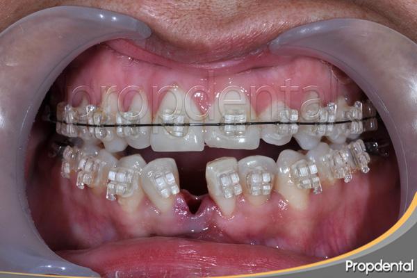 tratamiento de ortodoncia con extracciones