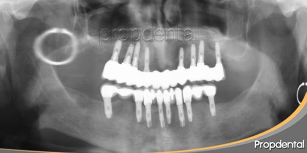 ortopantomgrafía implantes dentales