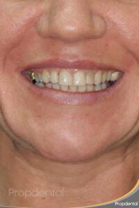 paciente de estética dental antes del tratamiento