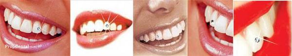 precio brillante dental