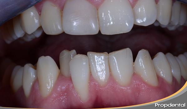 motivo de los dientes apiñados
