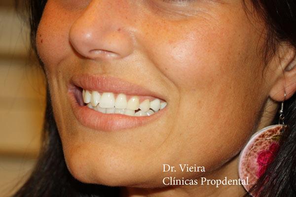 prótesis sobre el implante de un diente
