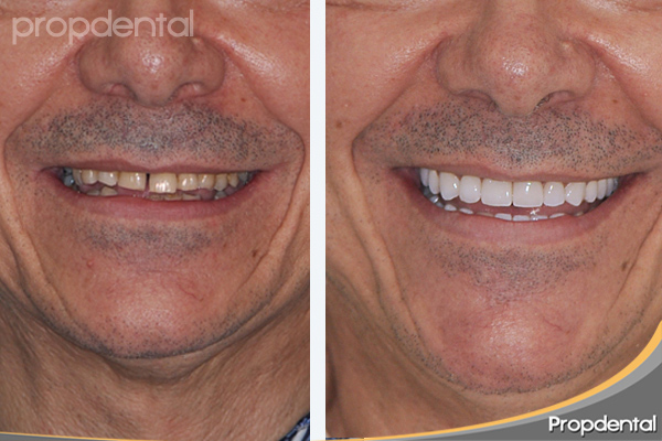 prótesis dental en clínicas propdental