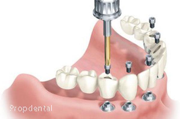 prótesis sobre implantes atornillada