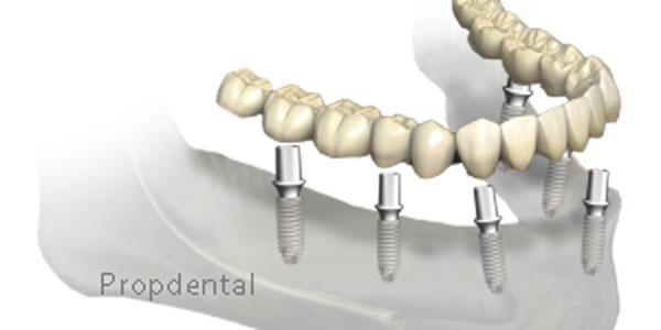 prótesis sobre implantes cementada