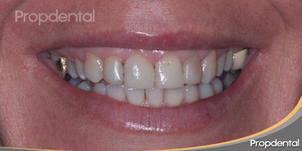sonrisa antes del tratamiento