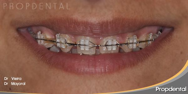caso clínico antes del tratamiento de estética dental en Propdental