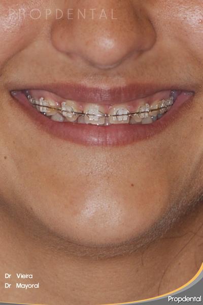 sonrisa con brackets de zafiro