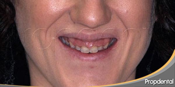 sonrisa gingival y su tratamiento