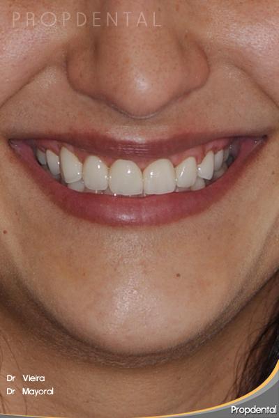 caso clínico de estética dental finalizado en Propdental