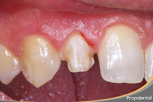 tallado del diente