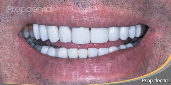 rehabilitación de la estética de la sonrisa con carillas dentales