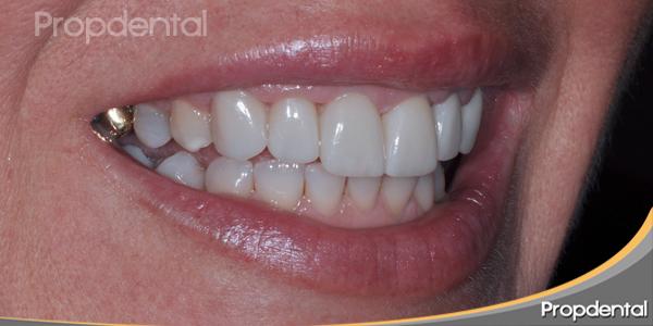 textura carillas dentales