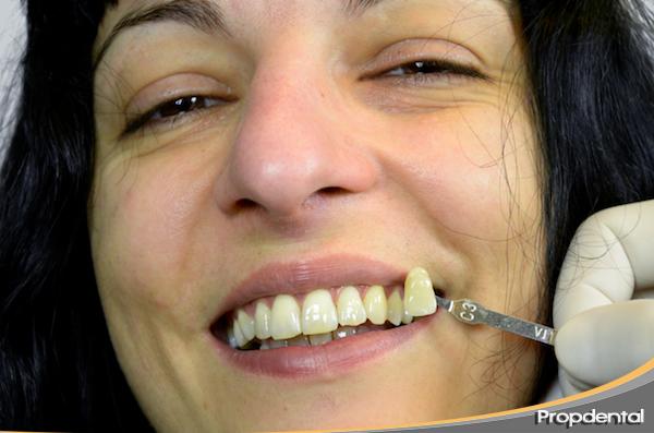 caso clinico blanqueamiento dental Barcelona