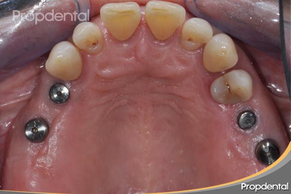 tratamiento implantología