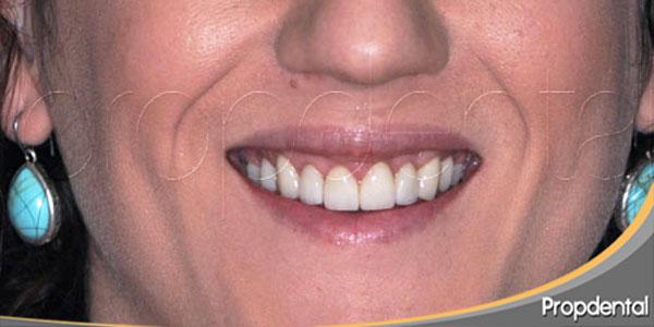 tratamiento de la sonrisa gingival con carillas dentales