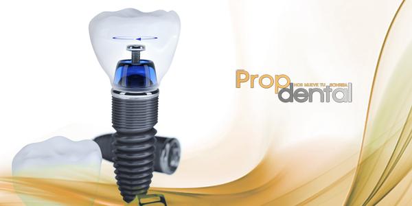 Complicaciones osteointegración implantes dentales