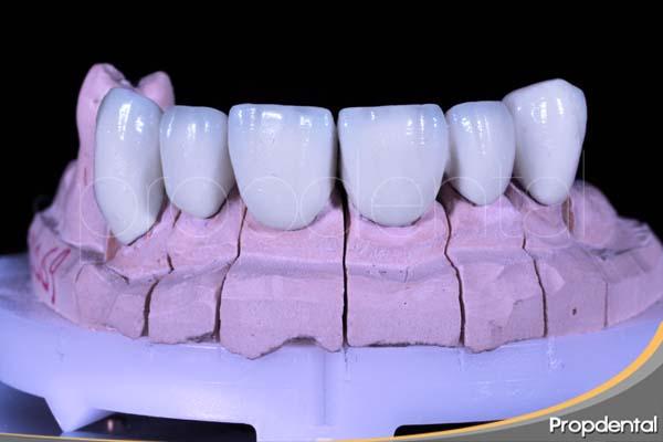 Localización de los dientes de las prótesis dentales