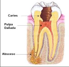 absceso endodóncico