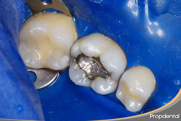 remoción segura del amalgama de plata