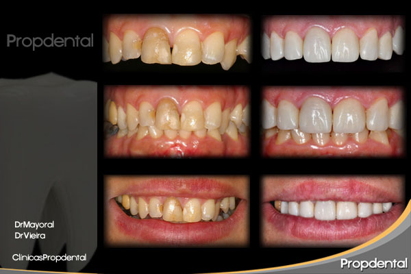 análisis dental para la estética dental de las prótesis dentales
