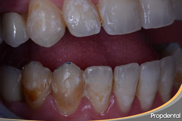 desmineralización del esmalte dental por bulimia