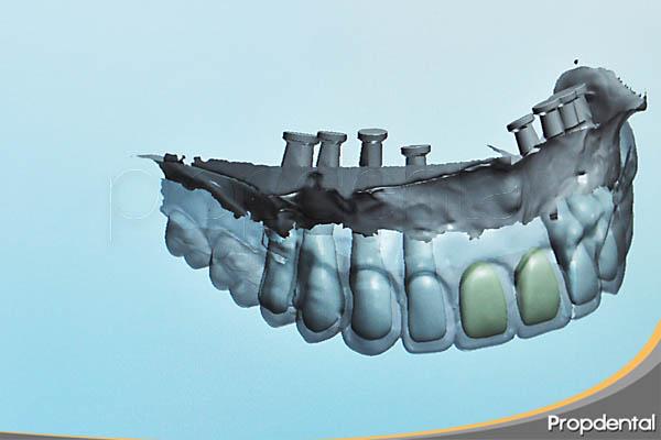diseño por ordenador de prótesis de zirconio sobre implantes