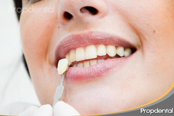 caso clínico antes dientes amarillos