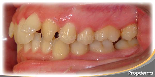 caso clínico aparatos de ortodoncia